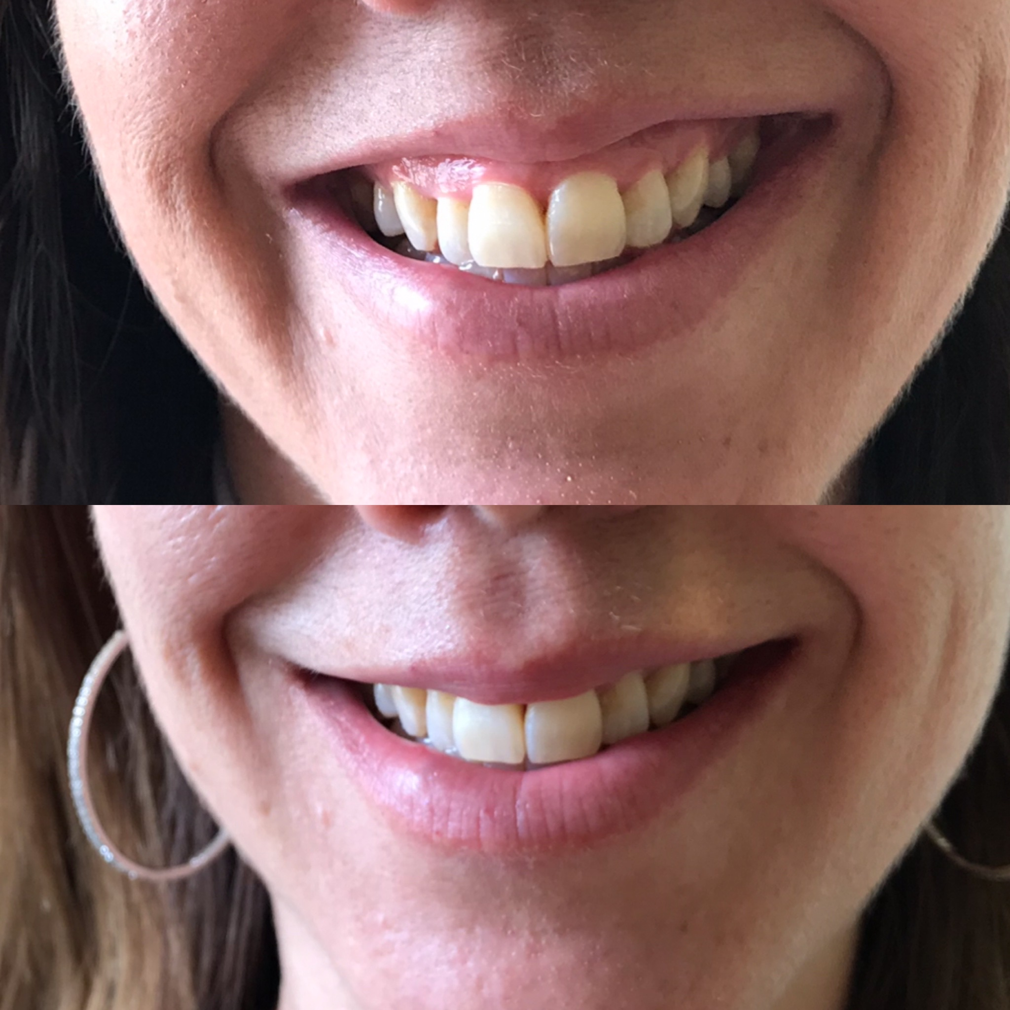 Botox and Costmetics Fillers Before & After